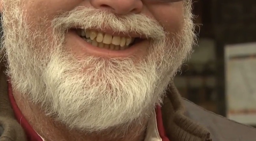 Beard Health & Other Hair Issues – Wednesday, April 22, 2015