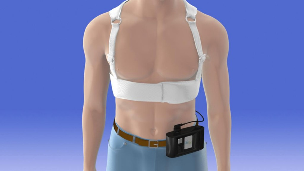 PRMC – Cardiac LifeVest Can Save Lives
