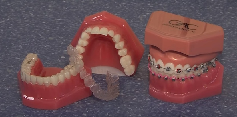 Orthodontic Treatments – Dr. Crouse's 'The Brace Place' – Thursday, Nov. 5, 2015