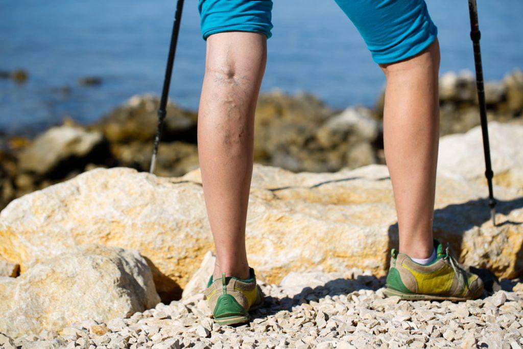 "Get Those Steps In During ""Walk-Tober"""